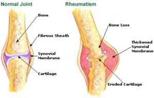 Natural Treatments for Rheumatism!